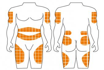 Rotación de los pinchazos de insulina